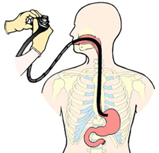 Гастроскопия для проверки желудка
